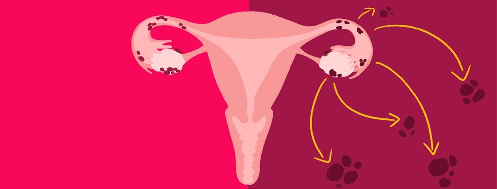 A uterus shows two different kinds of cancer - one isolated to ovaries and fallopian tubes, and one metastasizing to other parts of the body